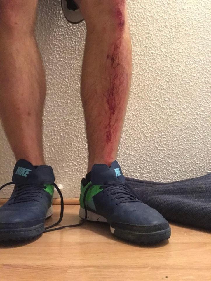 knee bloody
